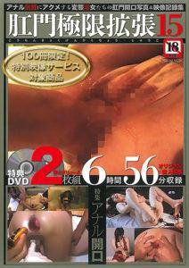 肛門極限拡張15