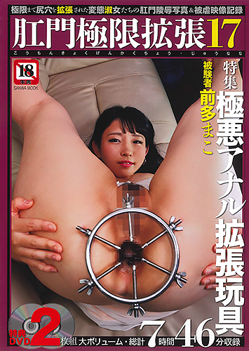 肛門極限拡張17